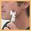 Thumbnail: ESR Skin Rejuvenation Needle Roller