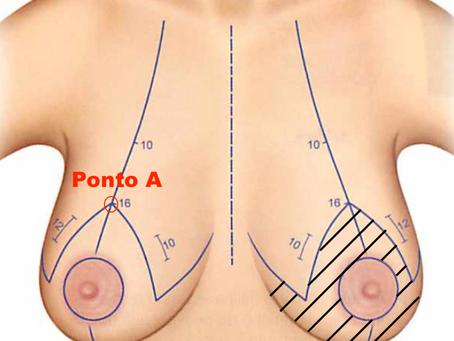 Mastopexia: a cirurgia corretiva das mamas caídas