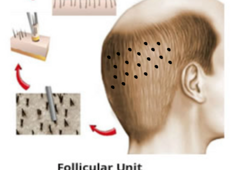 Implante Capilar - Qual a diferença entre FUE e FUT?