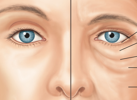 Blefaroplastia: conheça a Cirurgia das Pálpebras