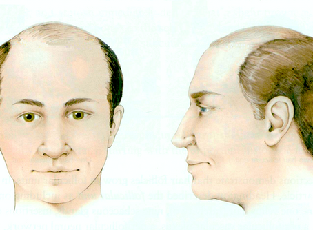 Como funciona a cirurgia da calvície?