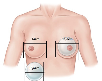 Qual o tamanho de prótese de mama eu devo colocar?