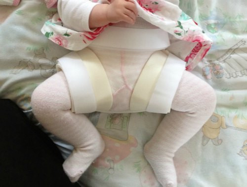 hip dysplasia baby
