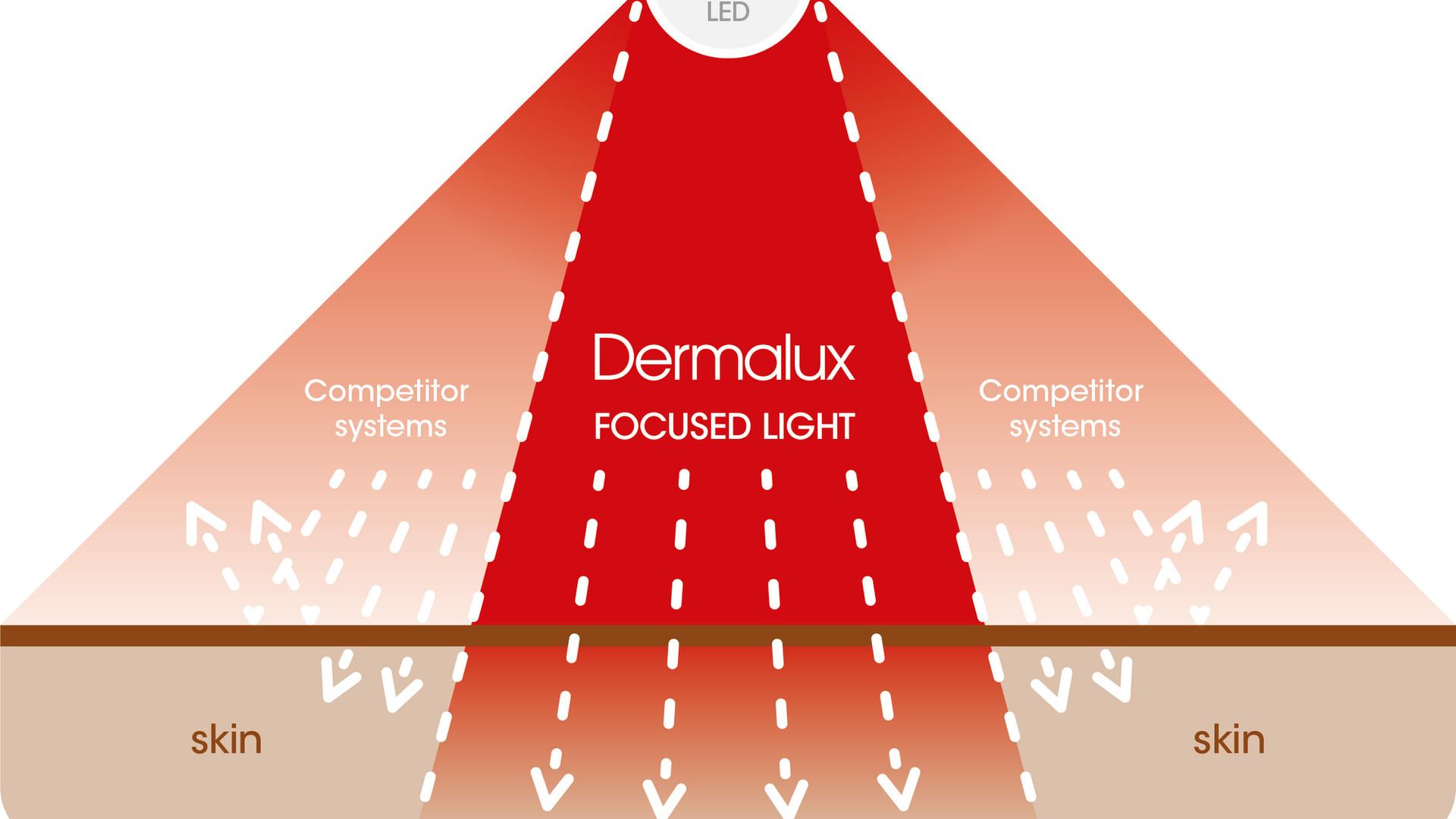 DERMALUX-New Focused Light Diagram-200x1