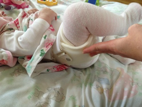 hip dysplasia baby brace