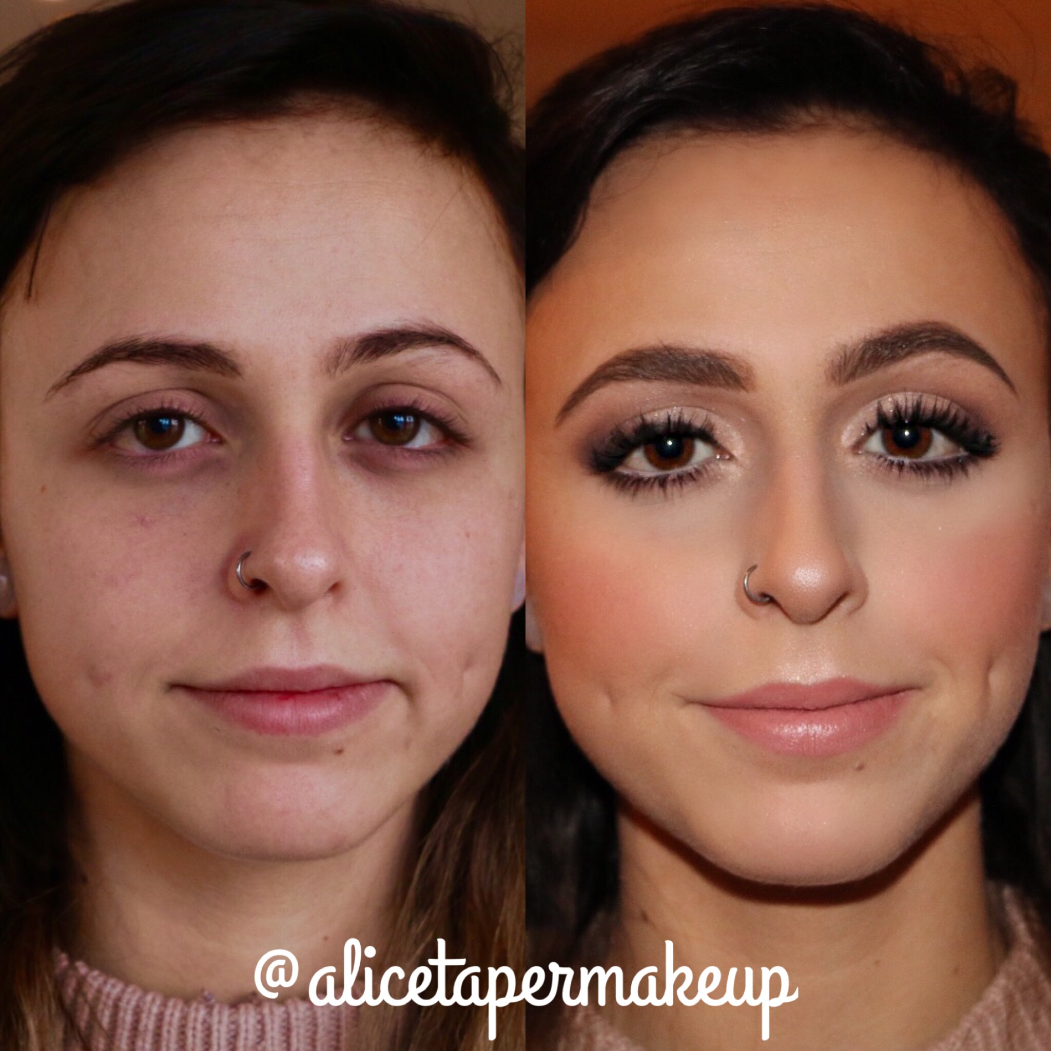 Before and After by Alice Taper