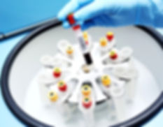 blood tubes in centrifuge, blue background, medical equipment, person using gloves in a lab scene