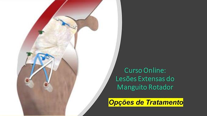 Curso Online: Lesões Extensas do Manguito Rotador