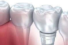 Implants_home.jpg