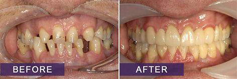 Artis_Implants-Before-After.jpg
