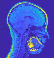 MRI + Ultrasound