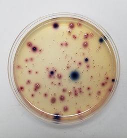 Culture Plate - Growing E. Coli.jpg