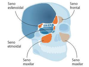 Tratamiento Sinusitis - Fisioterapia y Osteopatía