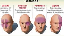 ¿Migraña o cefalea tensional?