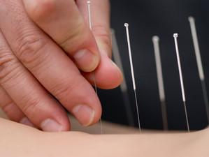¿Qué es la acupuntura?