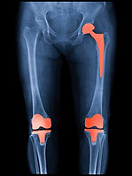 Xray scan of patient who have hip replac