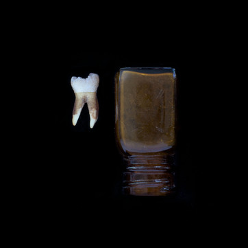 Human Tooth & Glass Bottle
