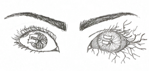 Drawing of a pair of eyes, the right eye is dark with veins spreading out from it