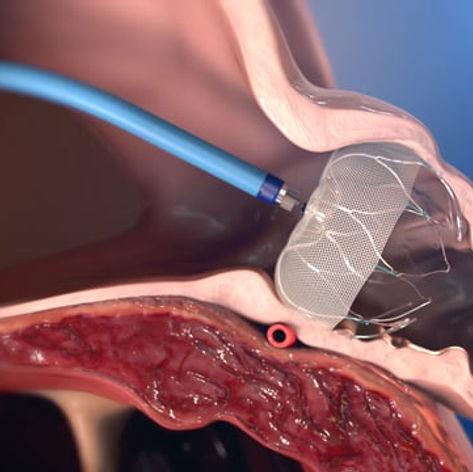 Cardiovascular animation