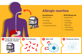 1 Day Management of Anaphylaxis
