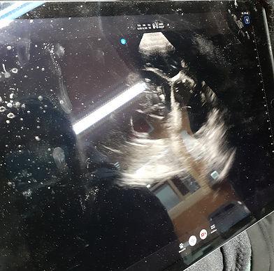 Ultrasound_edited.jpg