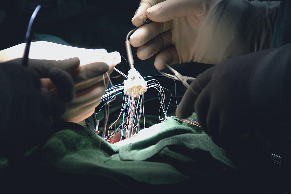 Herzchirurgie-Herzklappenersatz5.jpg