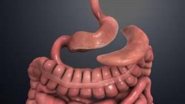 Cirugía de obesidad que más se realiza en Chile