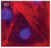 iPSCs_cardiomyocytes.jpg