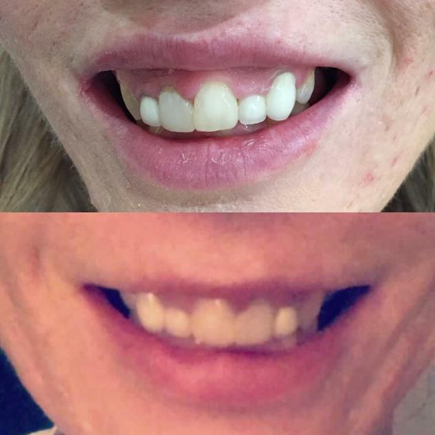 Treatment for Gummy smile