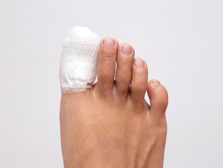 Ingrown Toenail was removed - now what?