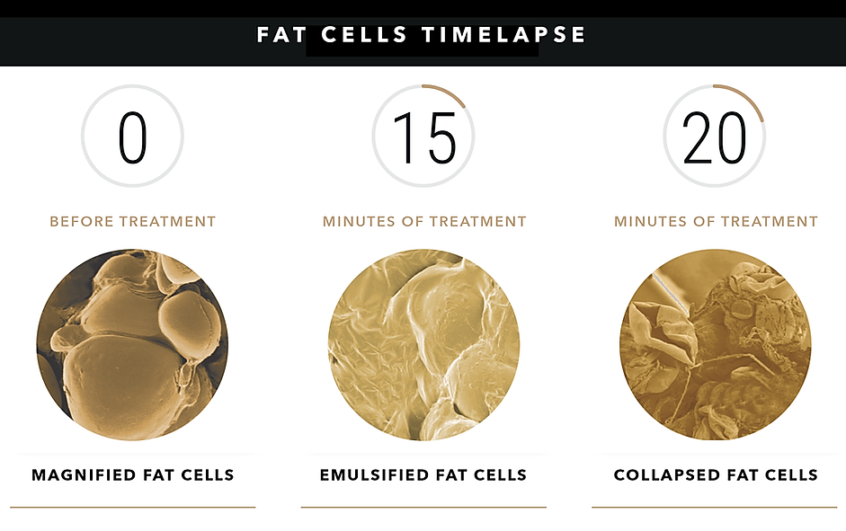 FAT CELL TIMELAPSE.png