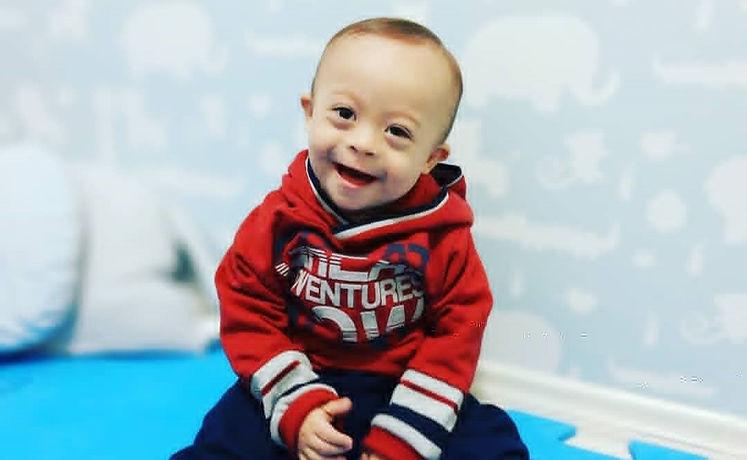 Criança com síndrome de down sorrindo