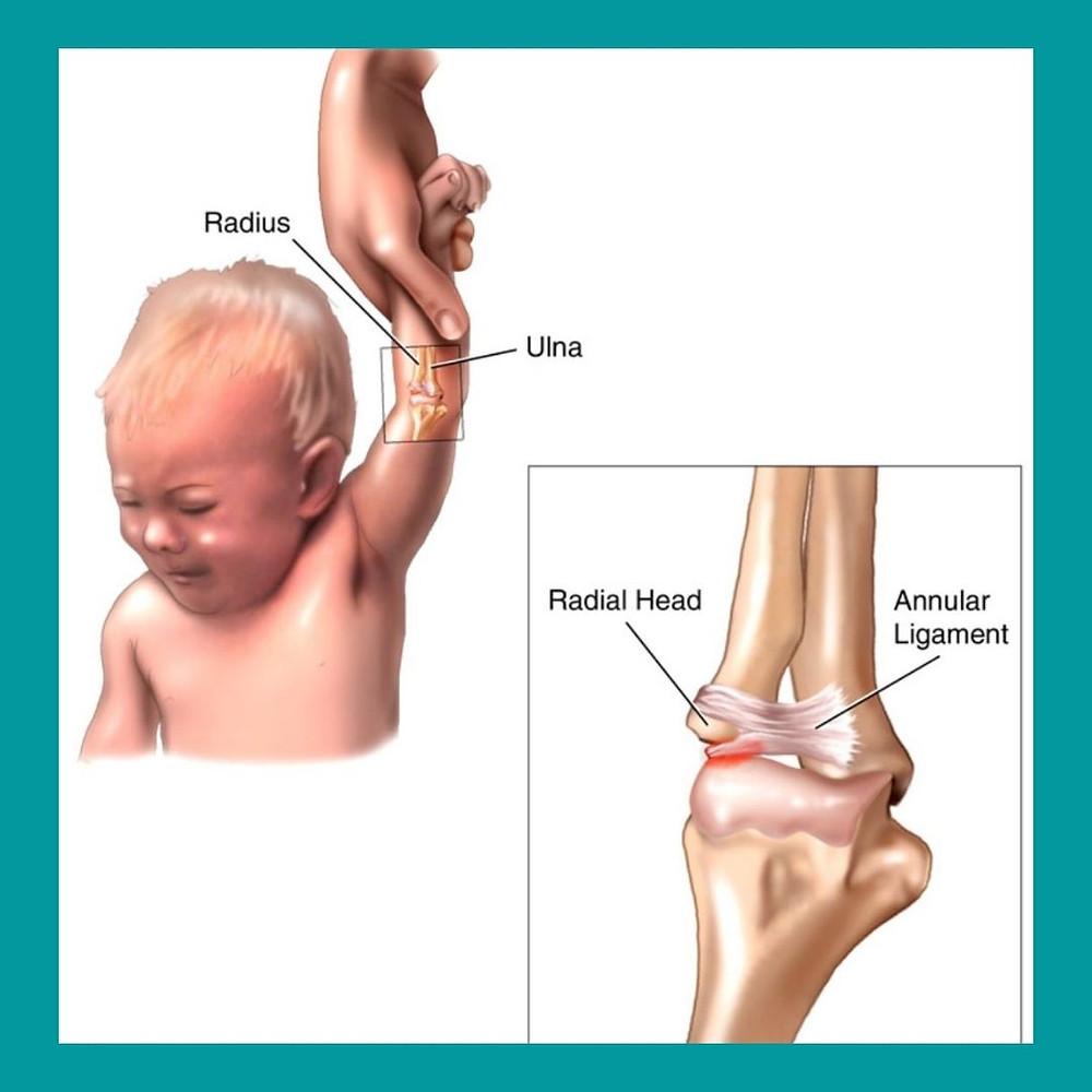 Criança com luxação do cotovelo e a recomendação de pediatra