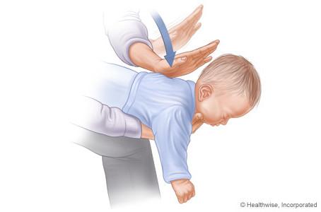 Como salvar um bebê engasgado