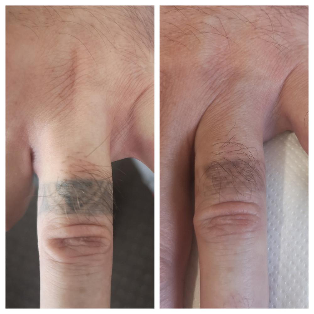 inlaturare tatuaj corporal cu laser
