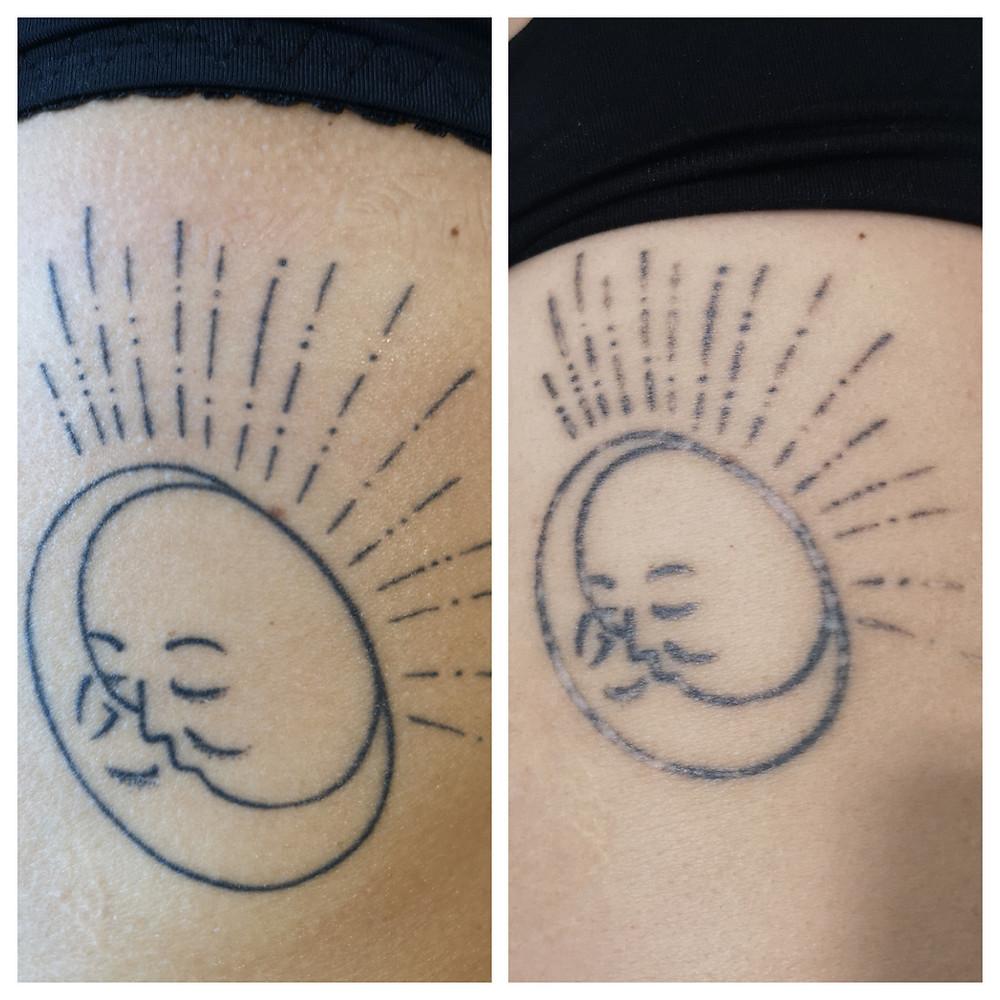 indepartare tatuaj corporal cu laser