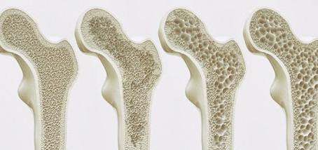 Osteoporoz Nedir?