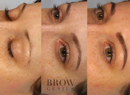 Microblading: A Two-Step Process