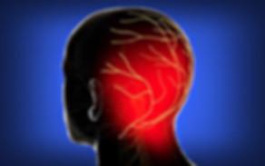 headache taunton