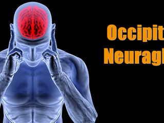 Are Your Headaches Occipital Neuralgia?