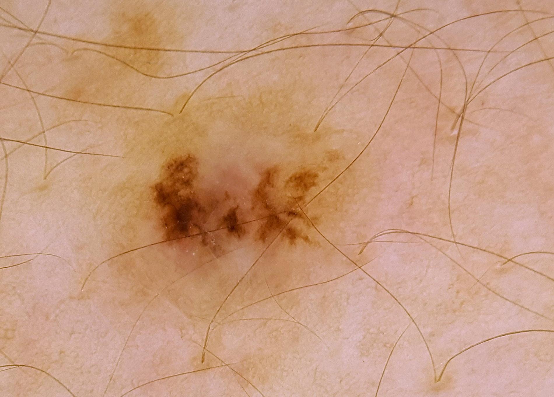 F2 Dermatoscopia