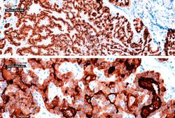 F11  (Tiroglobulina 10X / 40X)