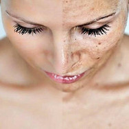 Chemical peel before and after Main adve