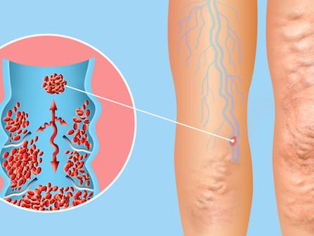 סובלים ורידים ברגליים – דליות? מתי תוכר מחלת הורידים כפגיעה בעבודה?
