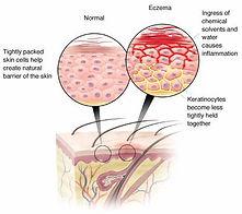 Atopic-Dermatitis.jpg