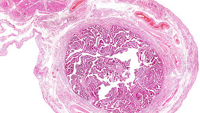 Endometrióza a ženská bylinná napářka
