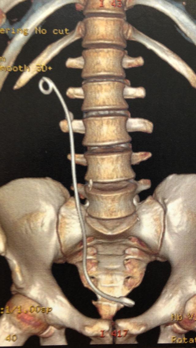 cateter duplo J  e cálculo no ureter D (tomografia abdomen)