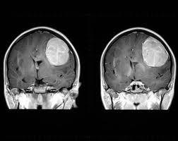 Tumorile cerebrale primare
