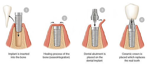 Dental-Implant-Procedure.jpg