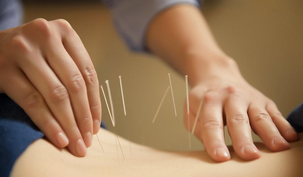 acupuncturist.jpg